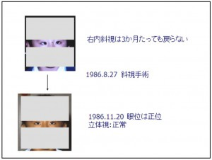 3D映像視聴後の斜視・複視の報告